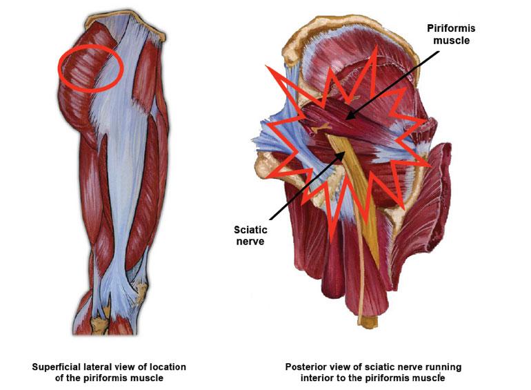 Yaletown Orthotics Yaletown Orthotics Piriformis Syndrome